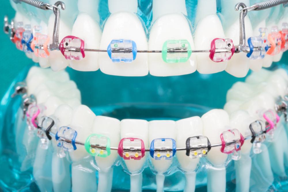 Understanding Orthodontics