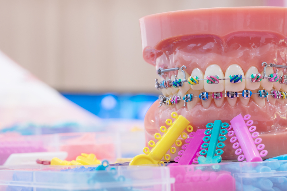 Orthodontics: Treatment & Brace Types