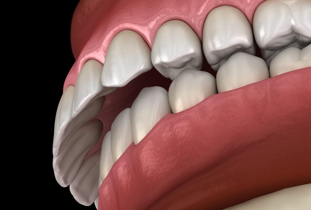 Orthodontics: Malocclusion of the Teeth